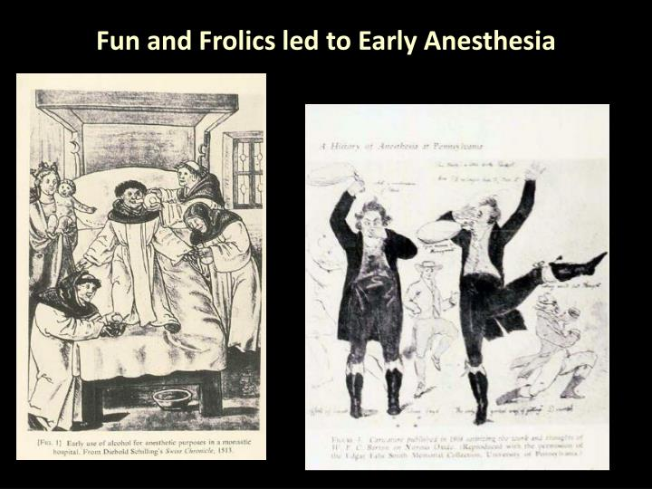 Fun and Frolics led to Early Anesthesia