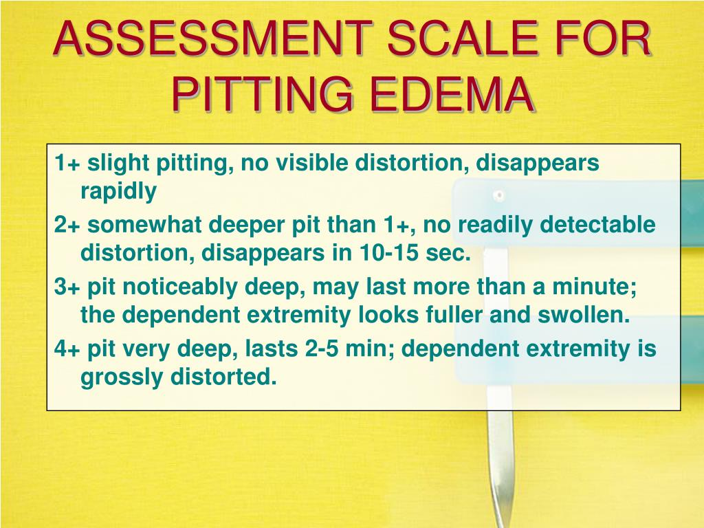 ASSESSMENT SCALE FOR PITTING EDEMA