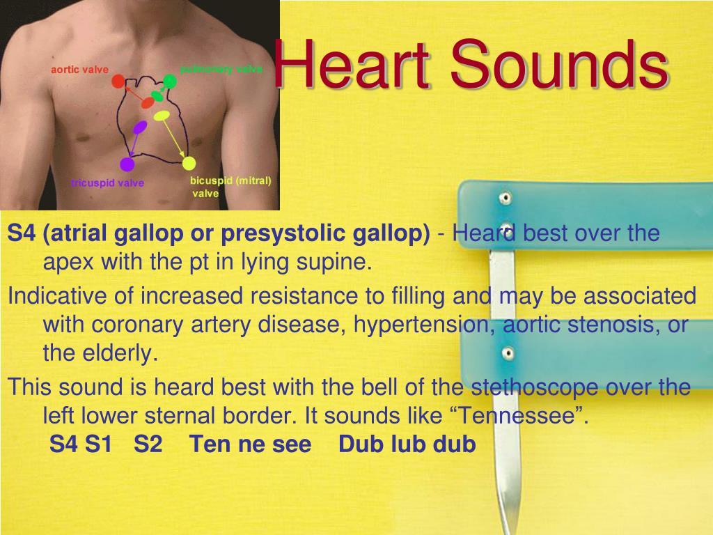 Heart Sounds