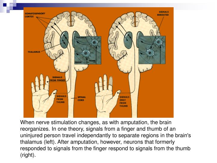 When nerve stimulation changes, as with amputation, the brain reorganizes. In one theory, signals from a finger and thumb of an uninjured person travel independantly to separate regions in the brain's thalamus (left). After amputation, however, neurons that formerly responded to signals from the finger respond to signals from the thumb (right).