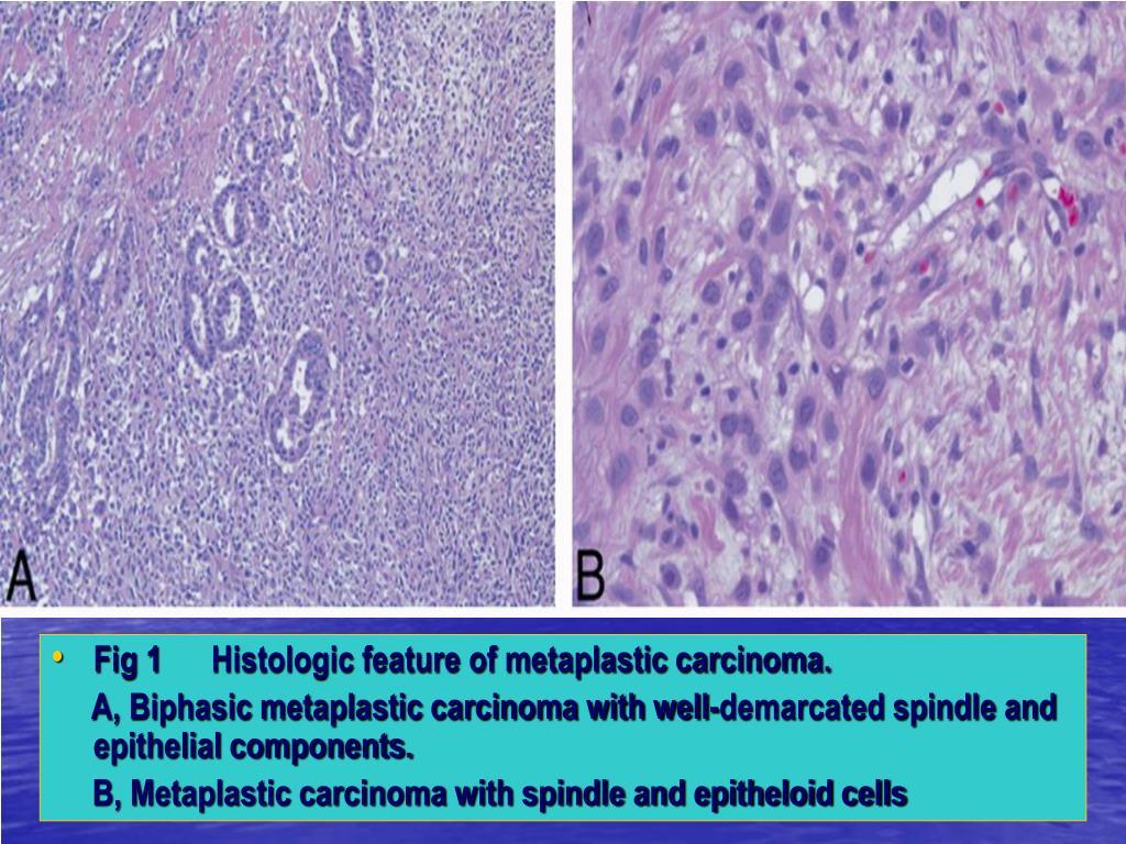 Fig 1      Histologic feature of metaplastic carcinoma.