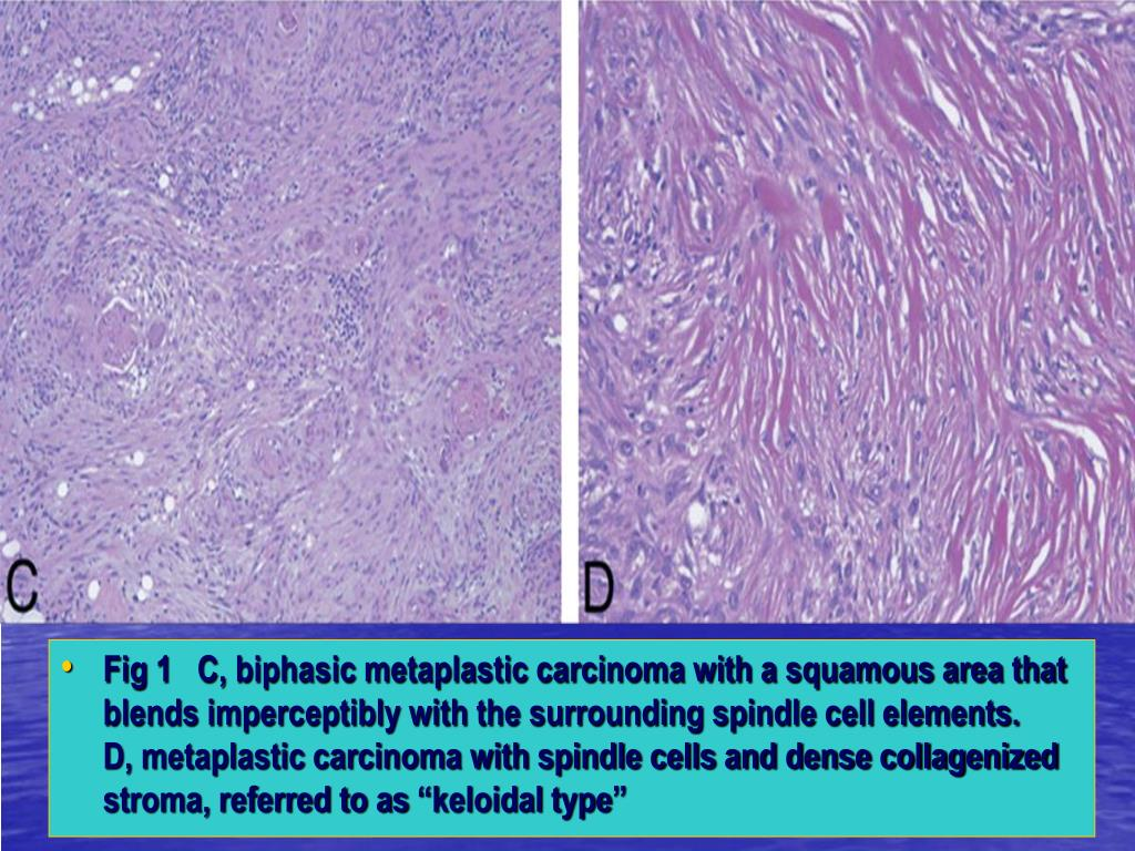 """Fig 1   C, biphasic metaplastic carcinoma with a squamous area that blends imperceptibly with the surrounding spindle cell elements.      D, metaplastic carcinoma with spindle cells and dense collagenized stroma, referred to as """"keloidal type"""""""