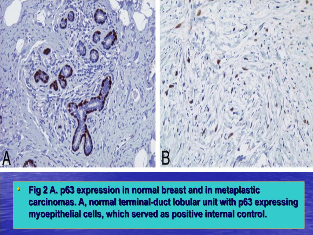 Fig 2 A. p63 expression in normal breast and in metaplastic carcinomas. A, normal terminal-duct lobular unit with p63 expressing myoepithelial cells, which served as positive internal control.