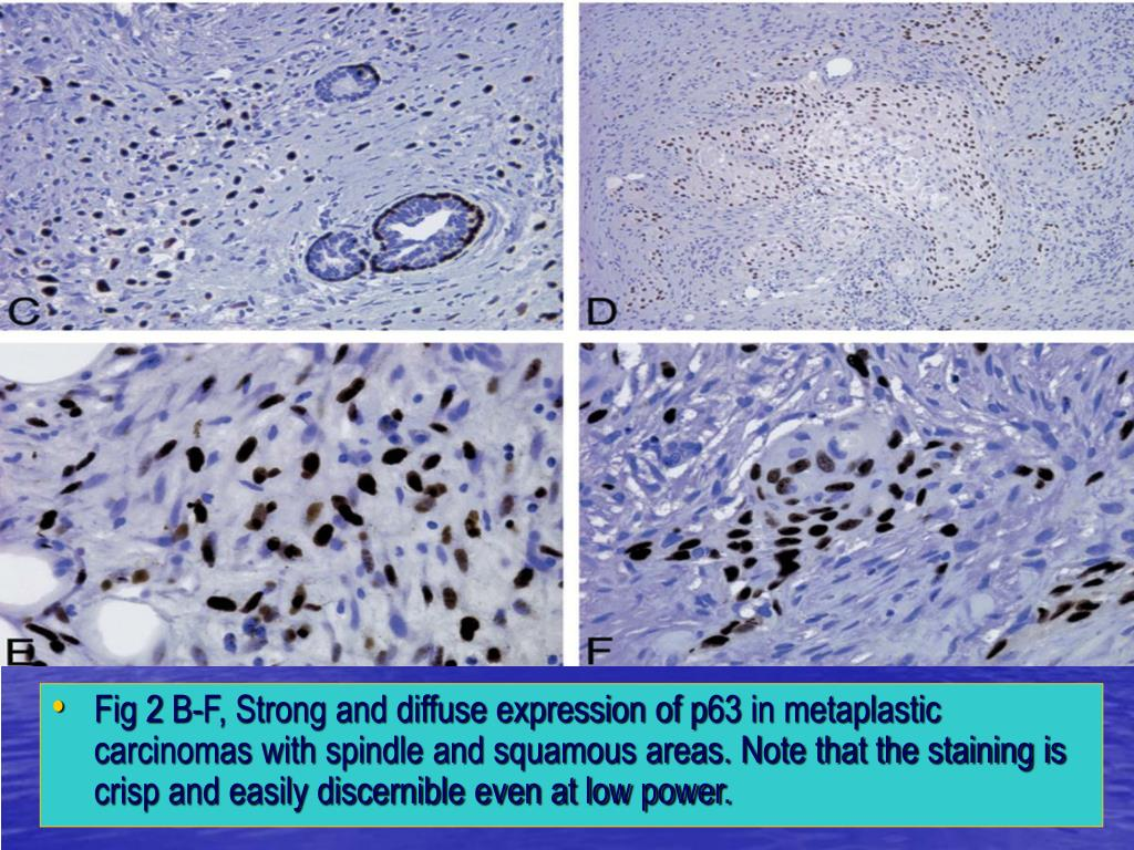 Fig 2 B-F, Strong and diffuse expression of p63 in metaplastic carcinomas with spindle and squamous areas. Note that the staining is crisp and easily discernible even at low power.
