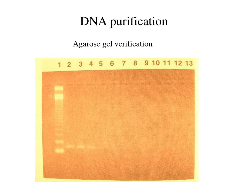 DNA purification