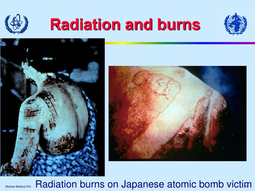 Radiation and