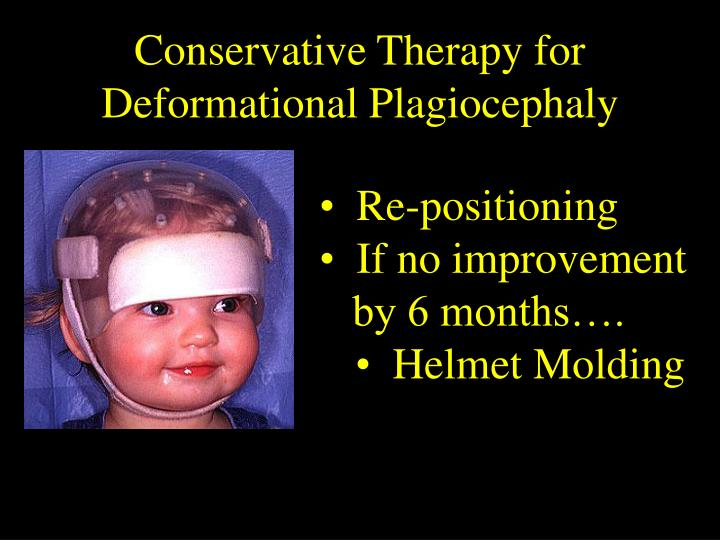 Conservative Therapy for Deformational Plagiocephaly