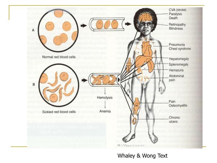 Whaley & Wong Text
