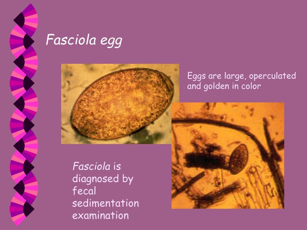 Fasciola egg