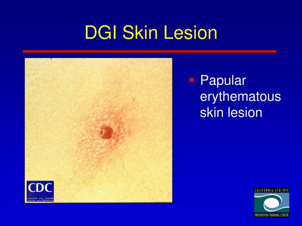 DGI Skin Lesion