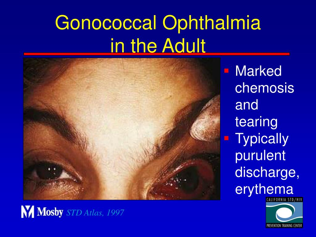 Gonococcal Ophthalmia