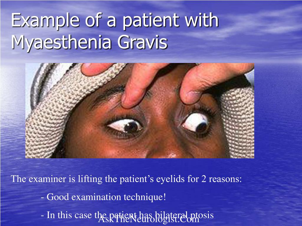 Example of a patient with Myaesthenia Gravis
