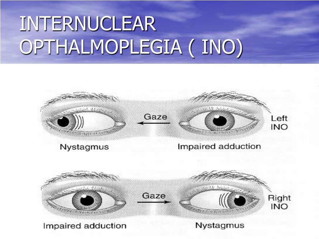 INTERNUCLEAR OPTHALMOPLEGIA ( INO)