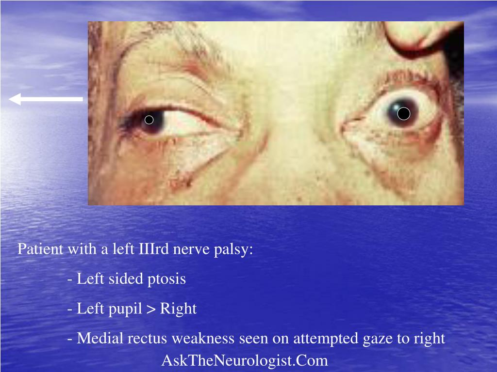 Patient with a left IIIrd nerve palsy: