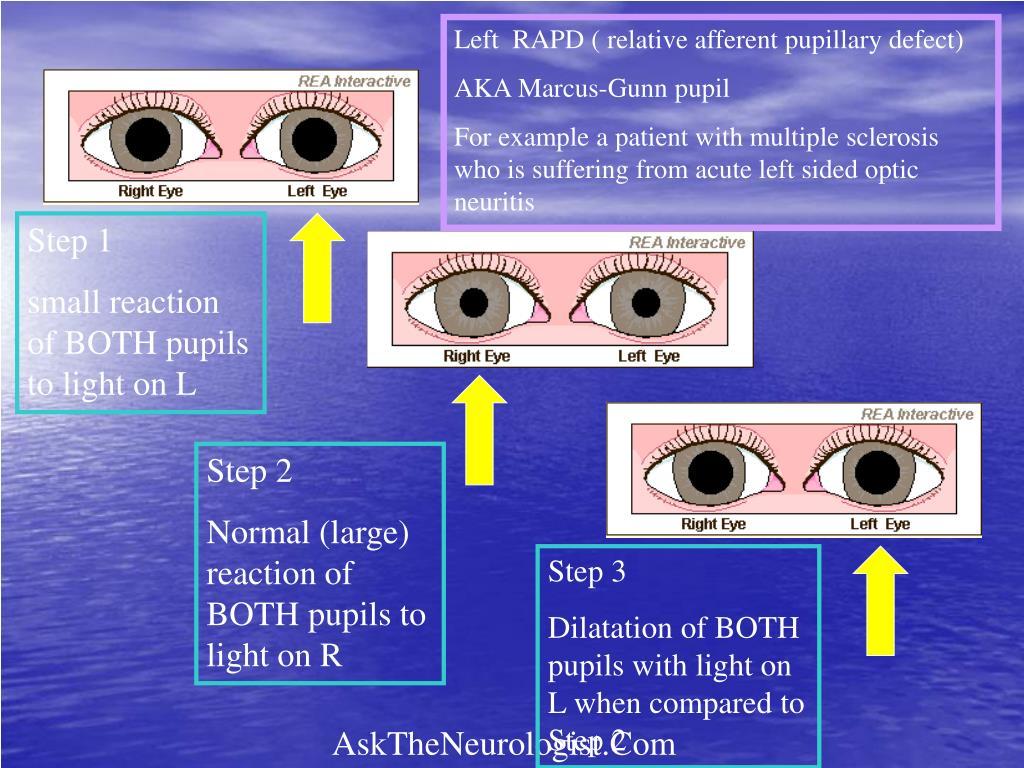 Left  RAPD ( relative afferent pupillary defect)
