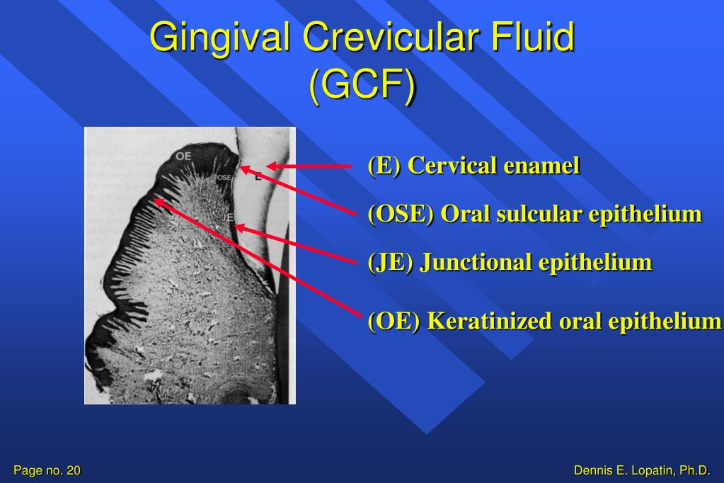 Gingival Crevicular Fluid (GCF)