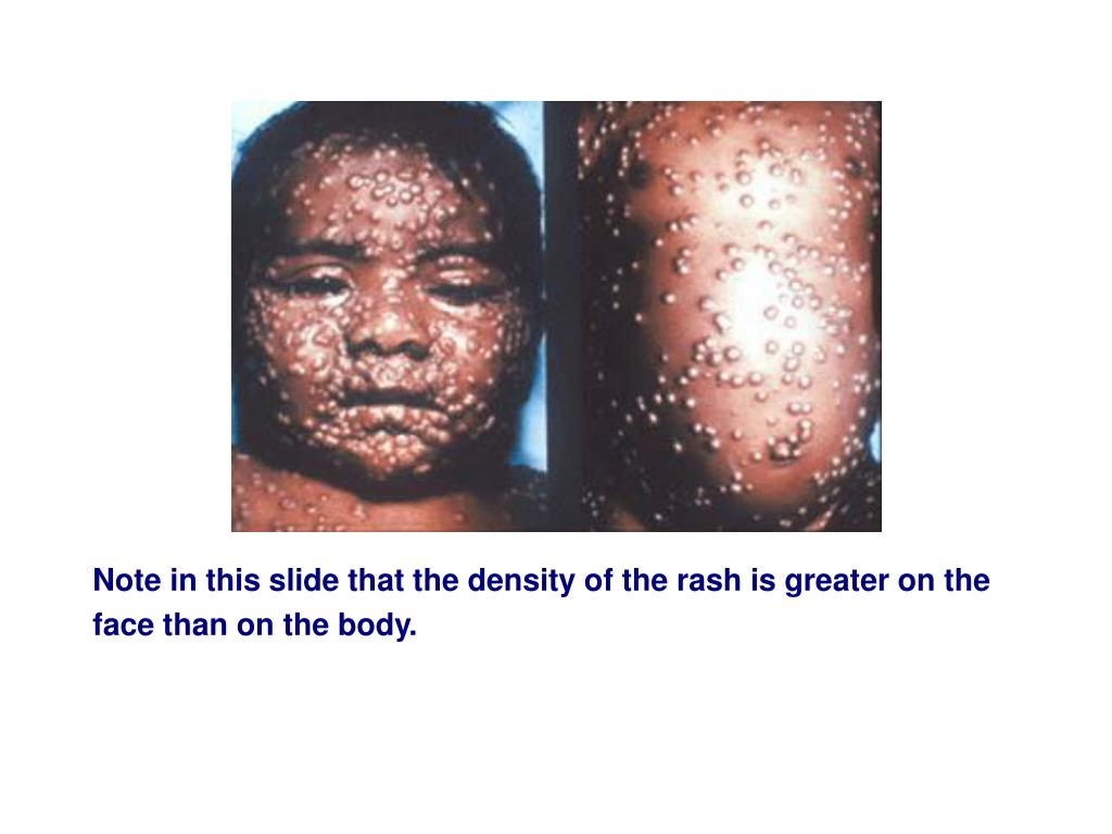 Note in this slide that the density of the rash is greater on the face than on the body.