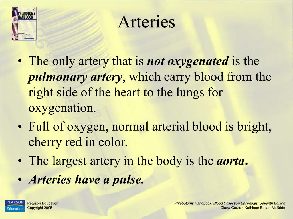 The only artery that is