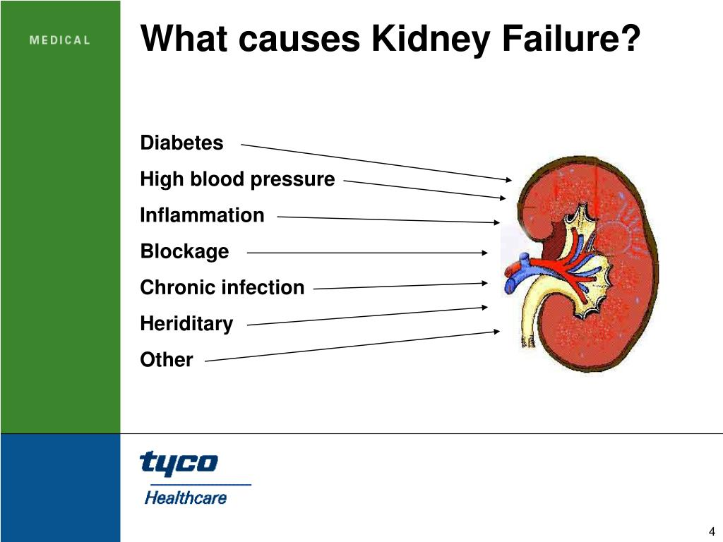 kidney failure causes driverlayer search engine