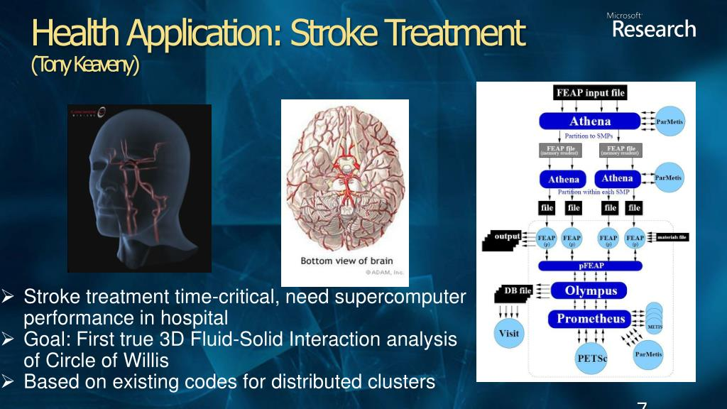 Stroke treatment time-critical, need supercomputer performance in hospital