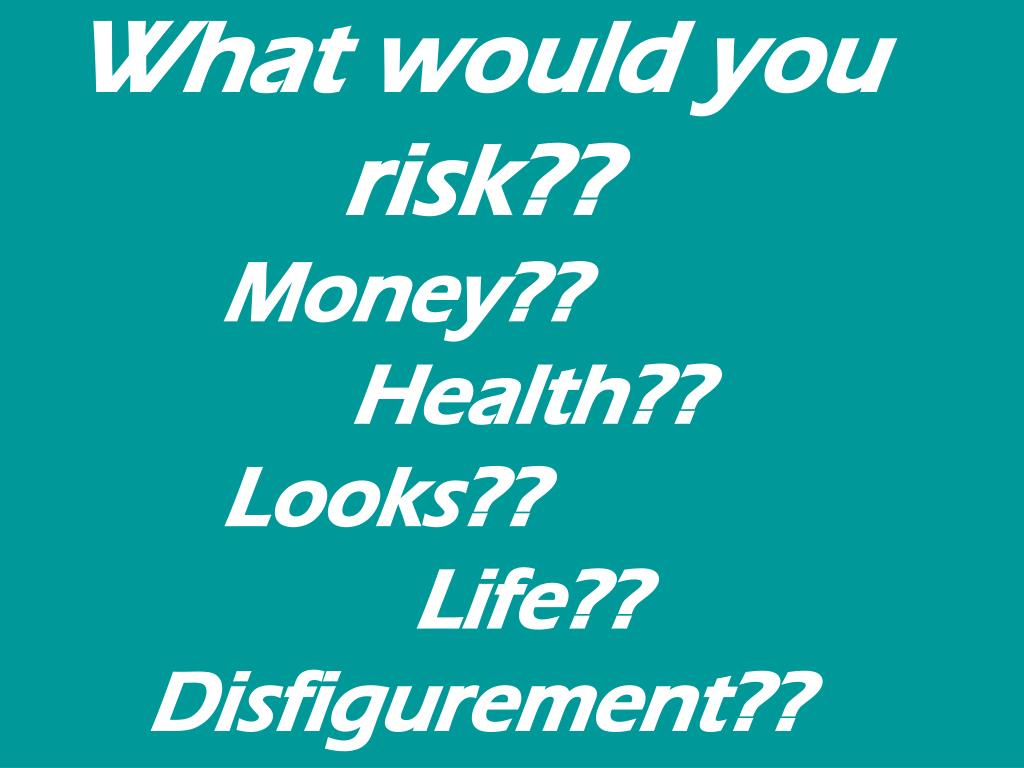 What would you risk??
