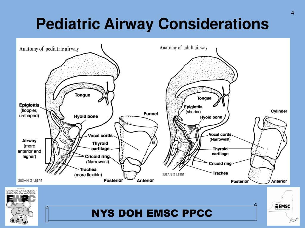 Pediatric Airway Considerations