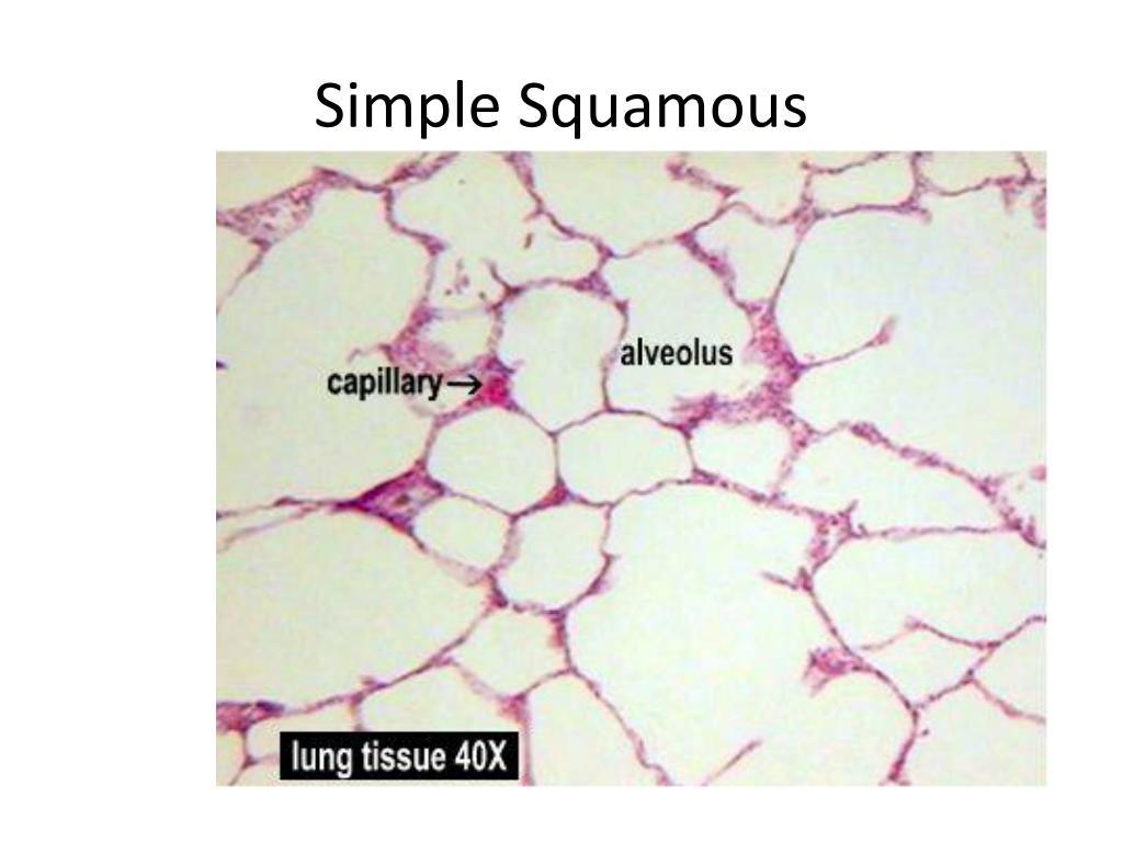 Simple Squamous