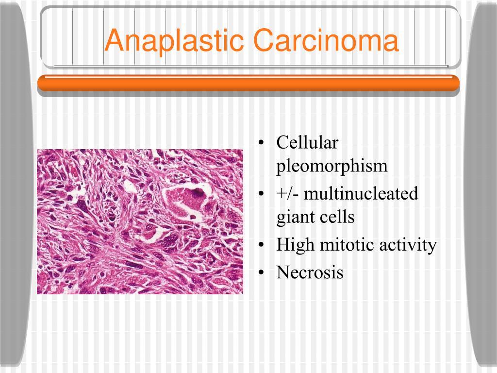 Anaplastic Carcinoma
