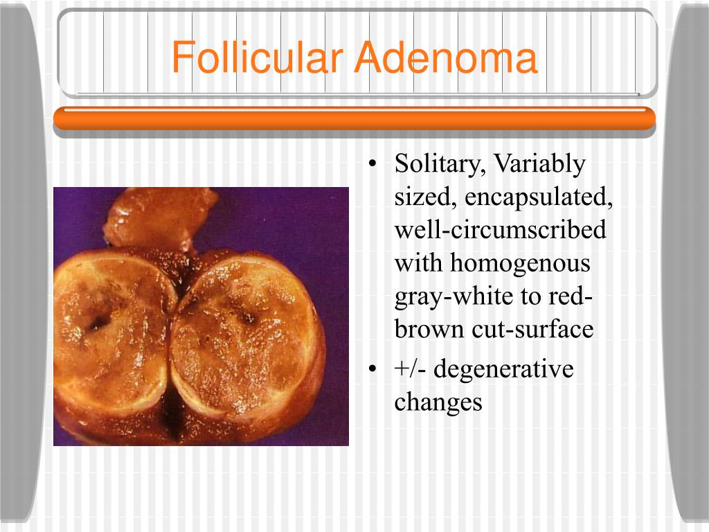 Follicular Adenoma