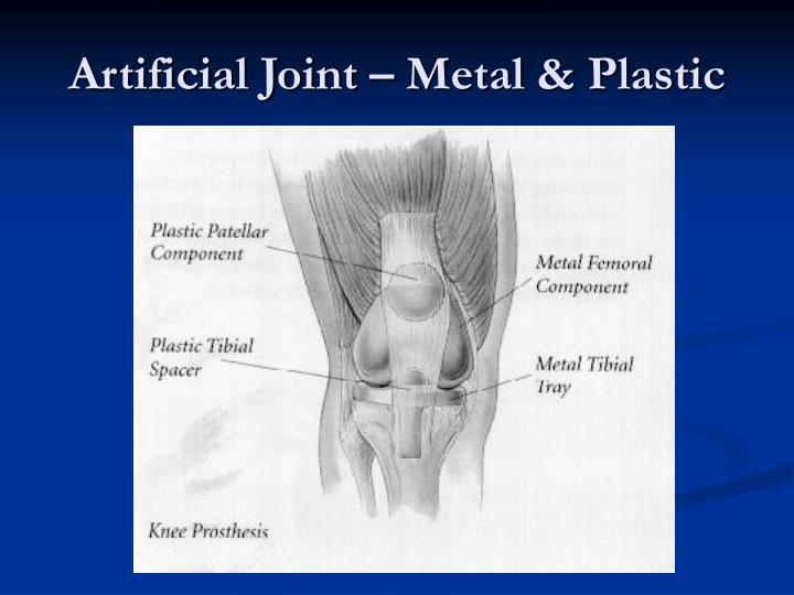 Artificial Joint – Metal & Plastic