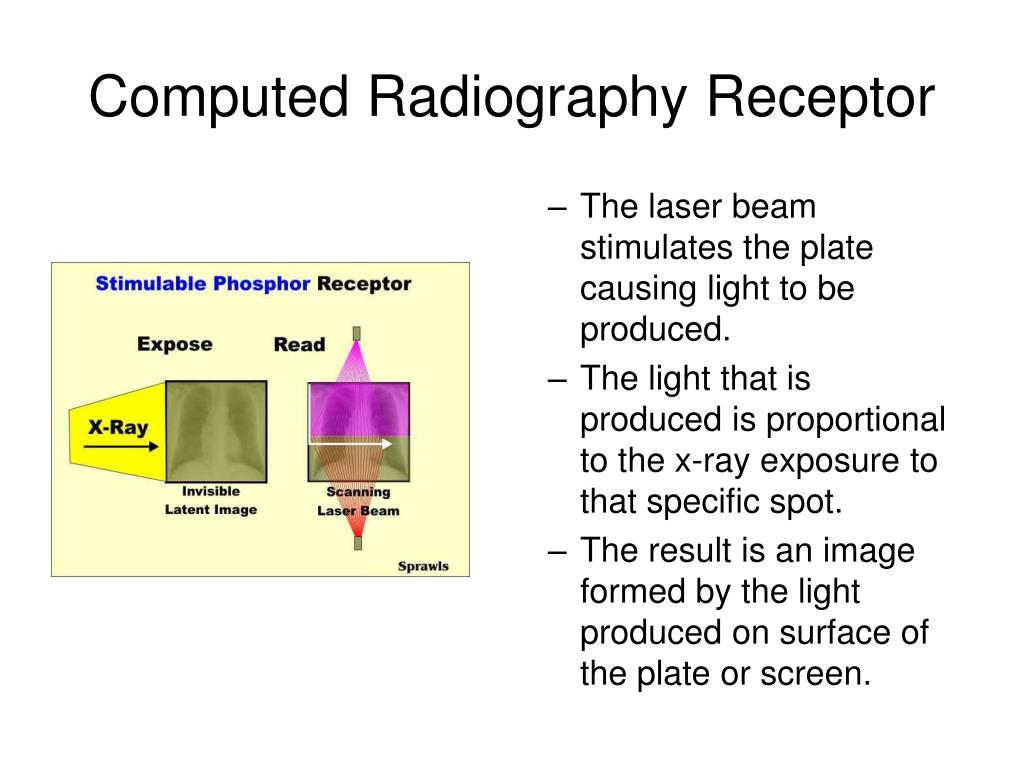 Computed Radiography Receptor
