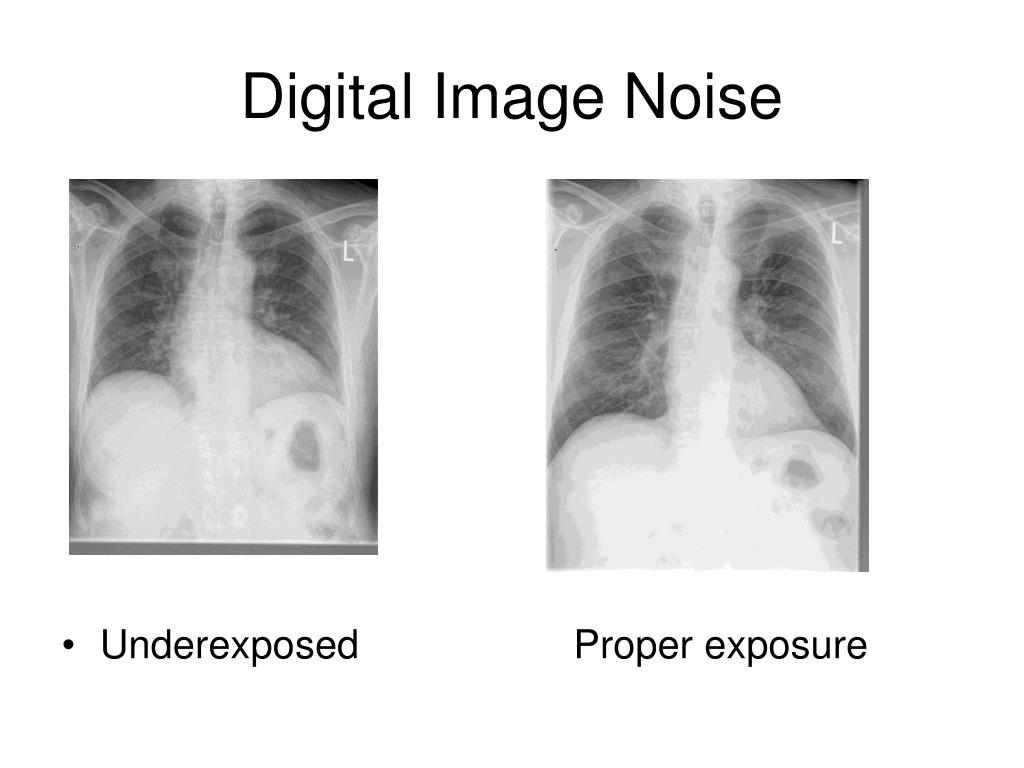 Digital Image Noise