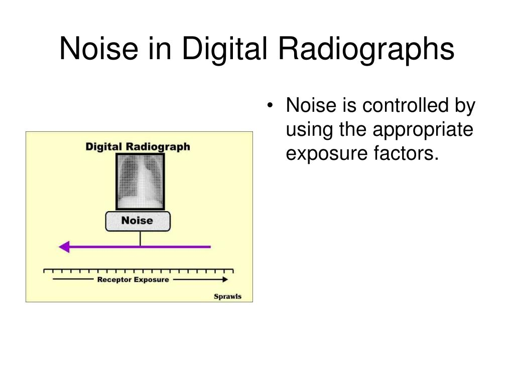 Noise in Digital Radiographs