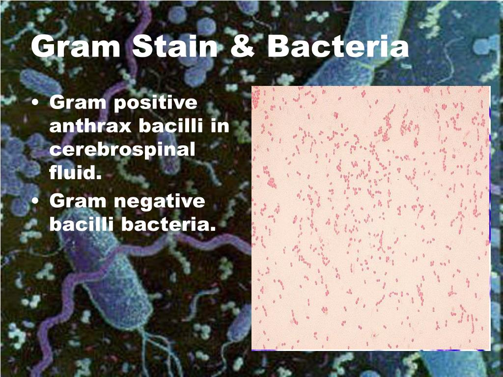Gram positive anthrax bacilli in cerebrospinal fluid.