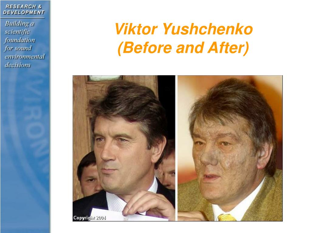 Viktor Yushchenko