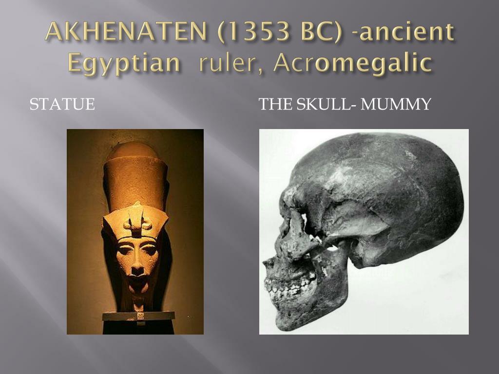 AKHENATEN (1353 BC) -ancient Egyptian