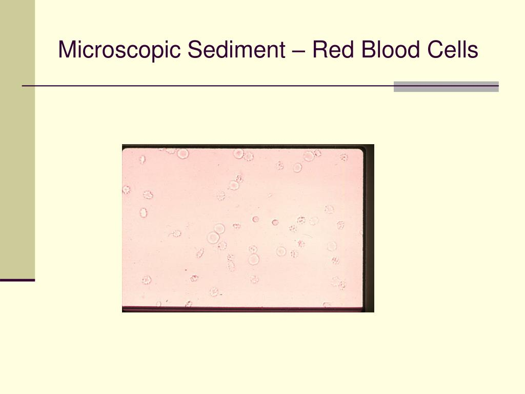 Microscopic Sediment – Red Blood Cells