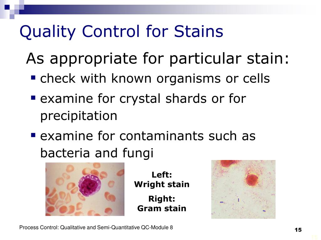 Quality Control for Stains