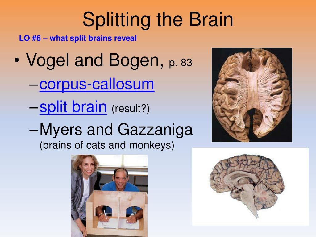 Splitting the Brain
