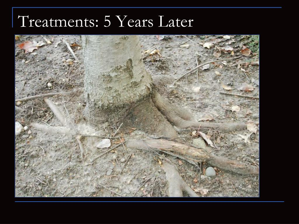 Treatments: 5 Years Later
