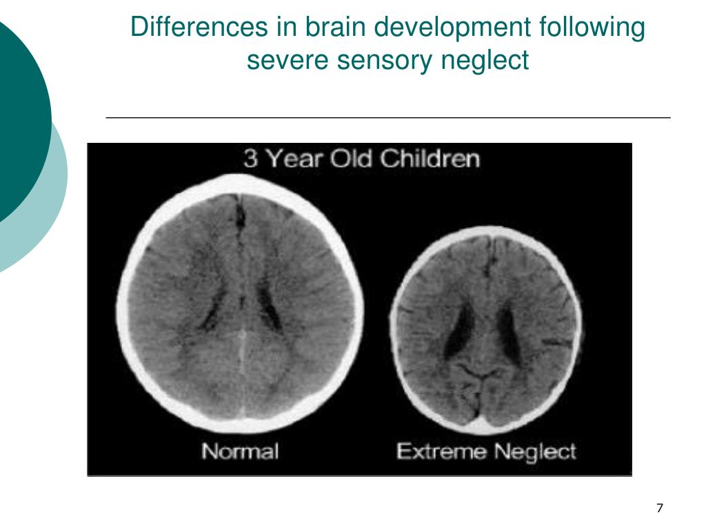 Differences in brain development following