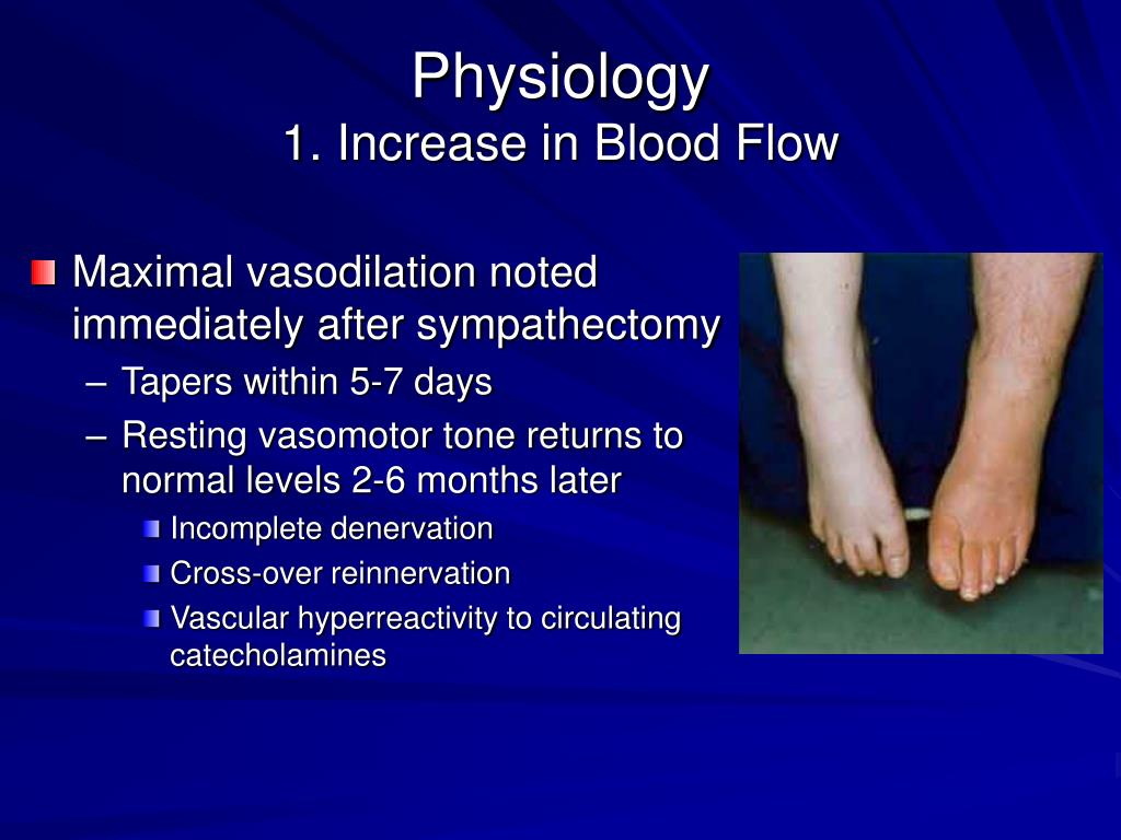 how to increase blood flow in feet