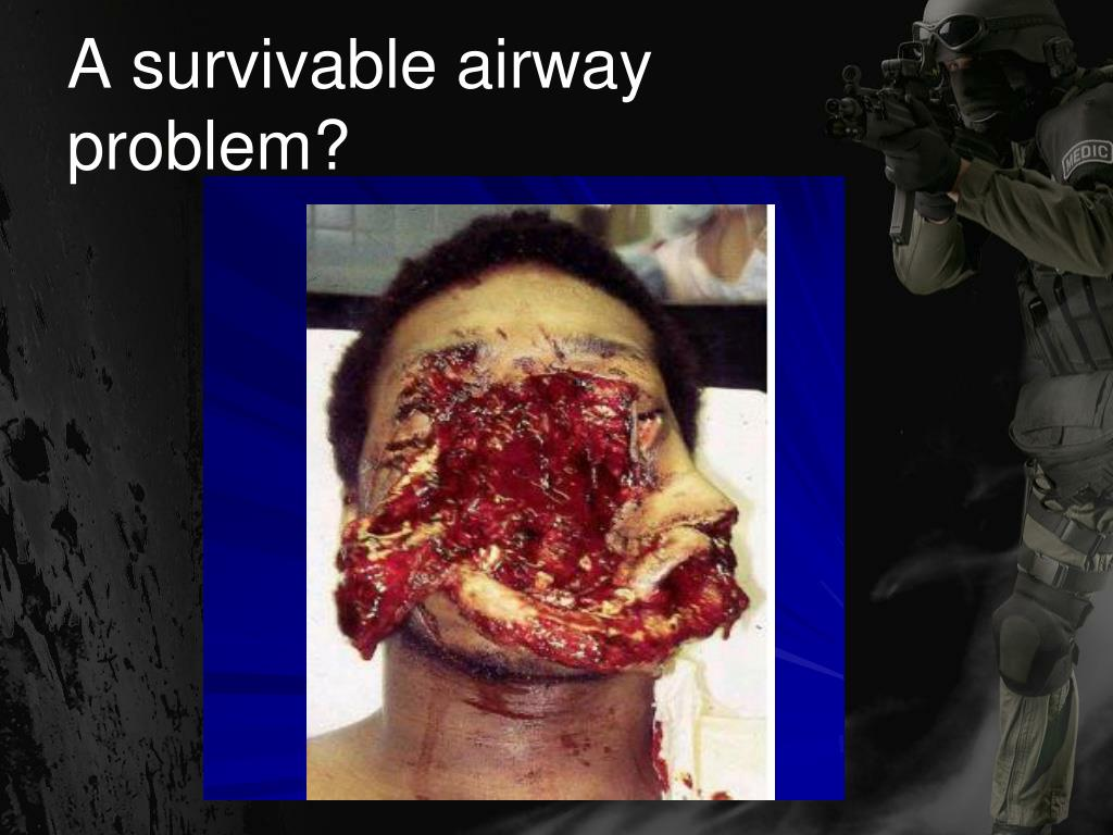 A survivable airway problem?