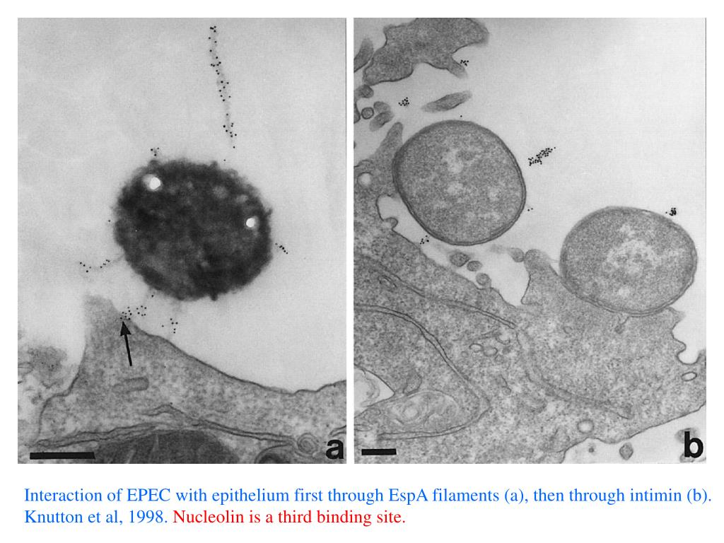 Interaction of EPEC with epithelium first through EspA filaments (a), then through intimin (b).