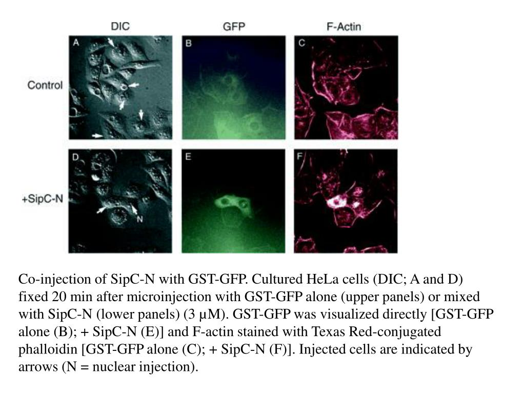 Co-injection of SipC-N with GST-GFP. Cultured HeLa cells (DIC; A and D) fixed 20 min after microinjection with GST-GFP alone (upper panels) or mixed with SipC-N (lower panels) (3 µM). GST-GFP was visualized directly [GST-GFP alone (B); + SipC-N (E)] and F-actin stained with Texas Red-conjugated phalloidin [GST-GFP alone (C); + SipC-N (F)]. Injected cells are indicated by arrows (N = nuclear injection).