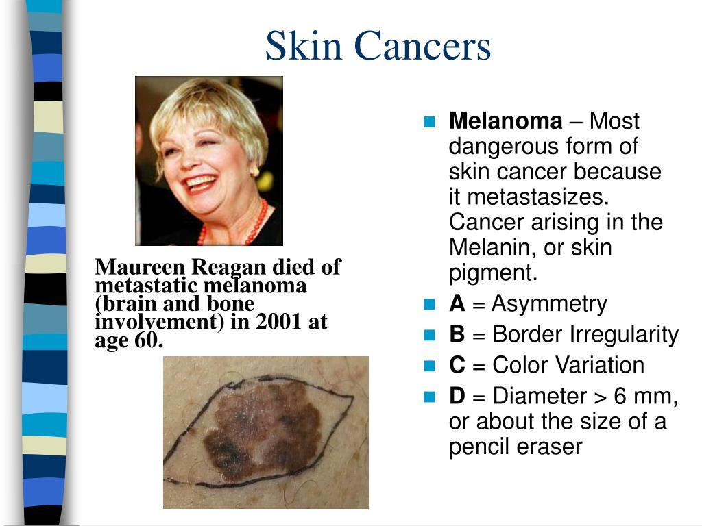 Skin Cancers