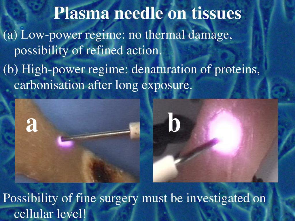 Plasma needle on tissues