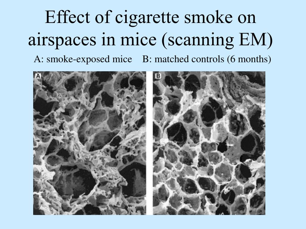 Effect of cigarette smoke on airspaces in mice (scanning EM)