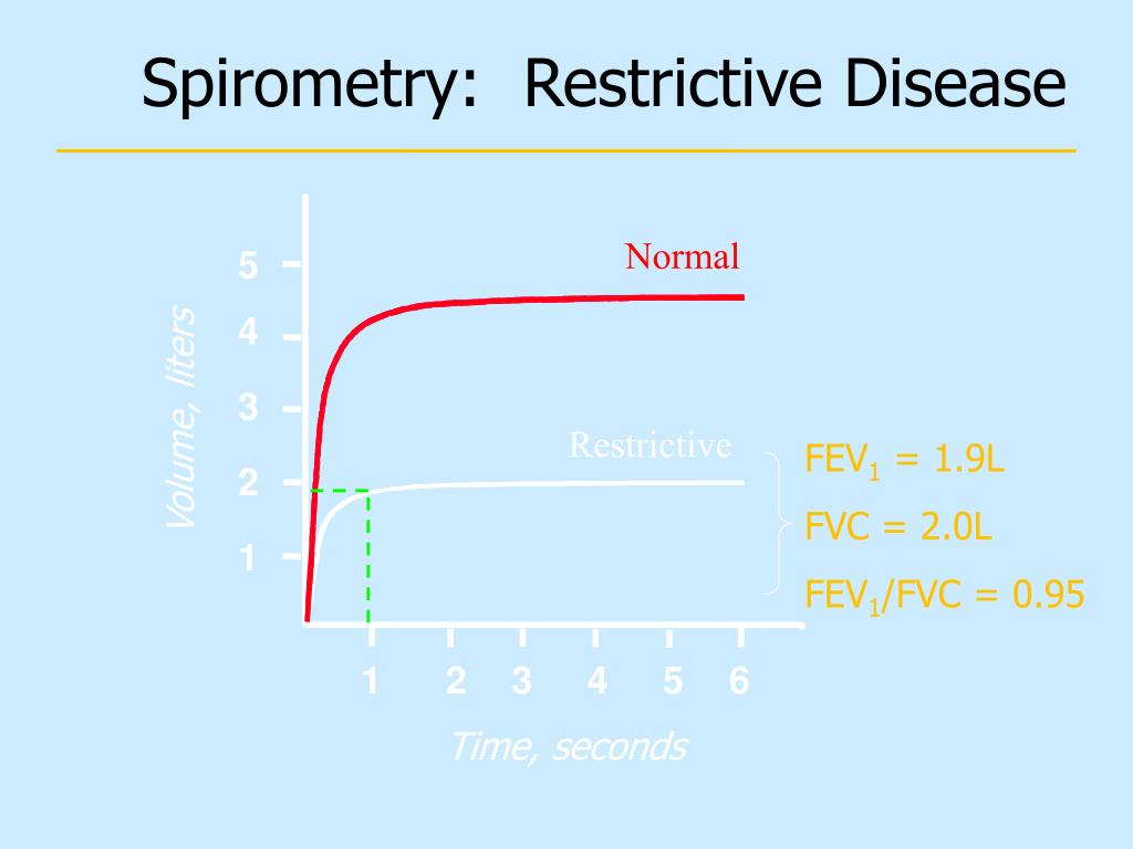Spirometry:  Restrictive Disease