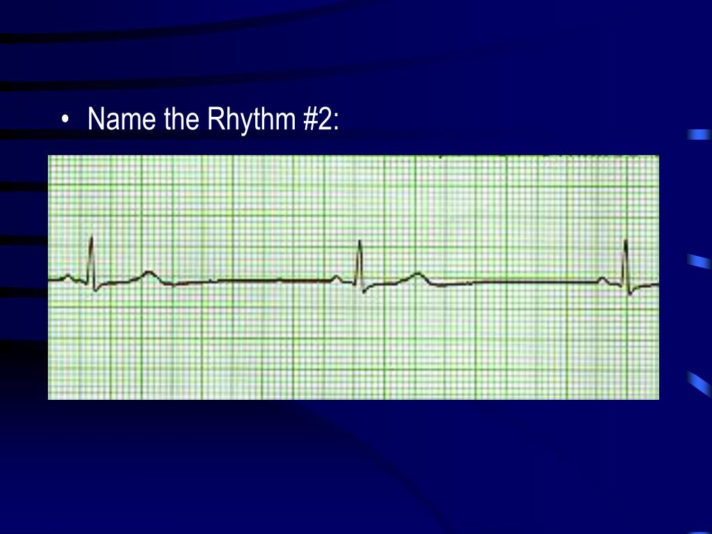 Name the Rhythm #2: